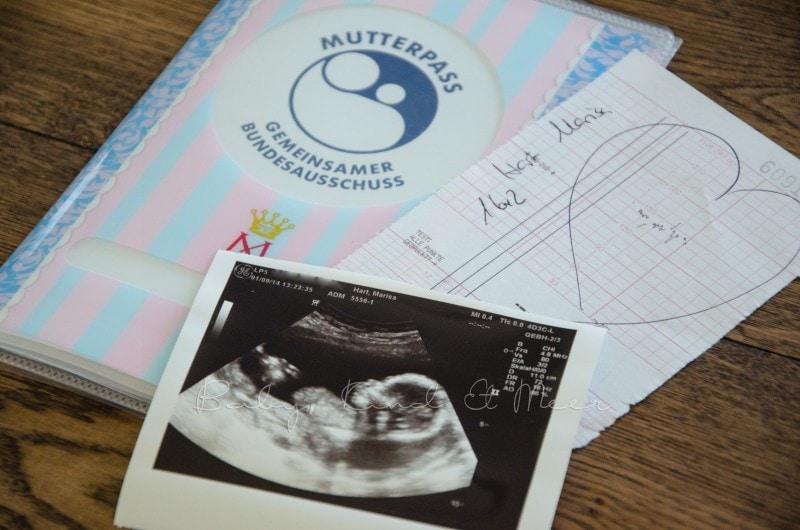 Schwangerschaftsanzeichen 7
