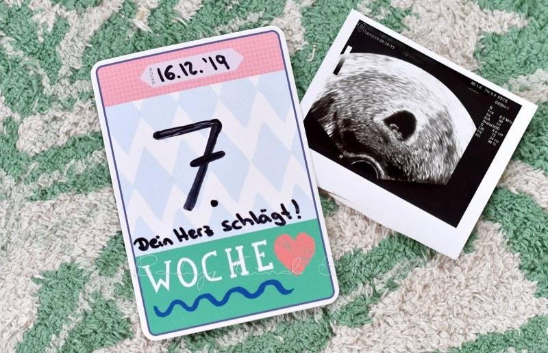 babykindundmeer schwanger ssw 8 bis 10 4